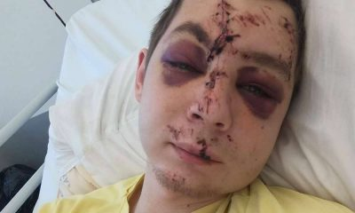 Poszkodowany pieszy z Krakowa prosi o pomoc w ustaleniu kierowcy, który go potrącił Źródło: Facebook/Spotted: Kraków